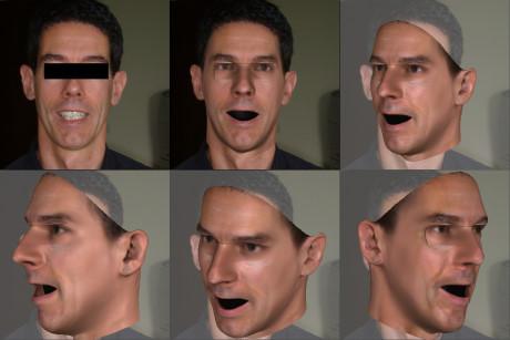 Aus einem 2D-Foto entsteht ein 3D-Modell, das gleichzeitig fehlende Bereiche wie die Augenpartie rekonstruiert. Zähne werden in diesem Modell nicht repräsentiert. Foto: Uni